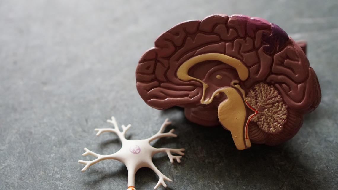 מהי אפילפסיה